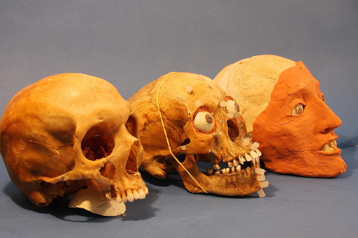 cranio3